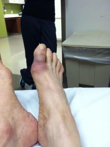 Broken toe two