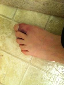 Left Toe